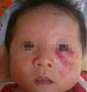 新生儿鲜红斑痣可以去掉吗