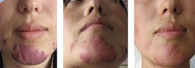 鲜红斑痣的治疗真的会有效果吗