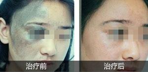 广州哪家医院可以治疗太田痣