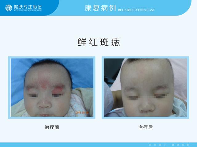 婴幼儿鲜红斑痣能去掉吗
