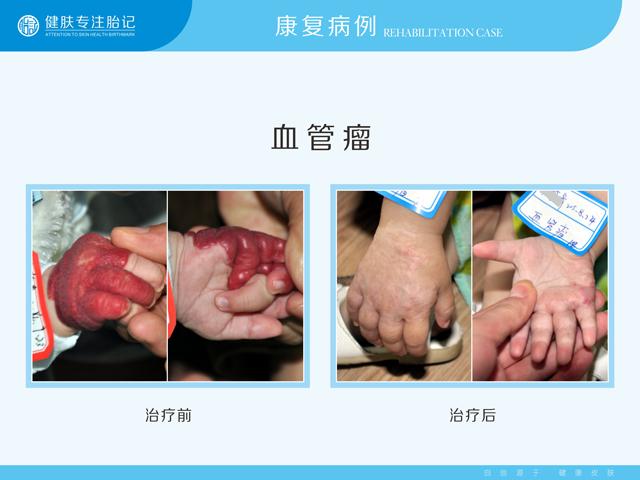 广东省哪里有治疗血管瘤的医院